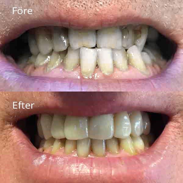 Tandreglering - Specialister på tandreglering före och efteråt - Västra Frölunda tandläkarna