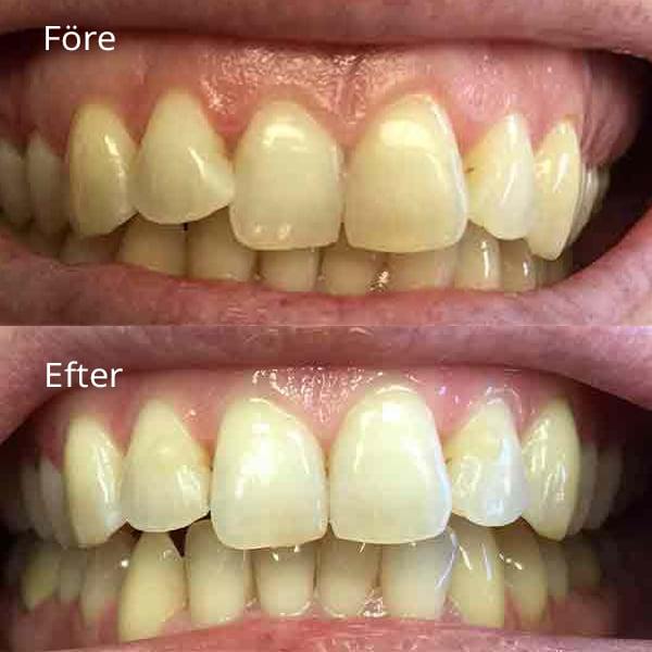 Tandreglering Göteborg med före och efter bild med hygienarbete | Frölunda tandläkarna är specialister på tandreglering