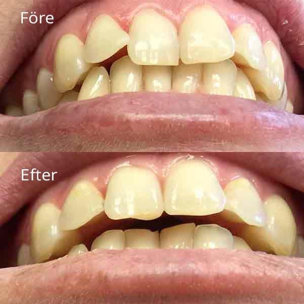 Tandreglering Göteborg med före och efter bild | Frölunda tandläkarna är specialister på tandreglering
