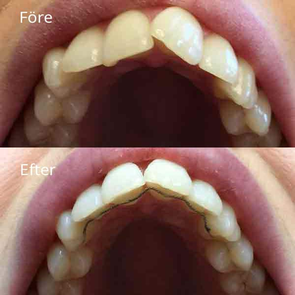 Tandställning Göteborg | Frölunda tandläkarna är specialister på tandreglering